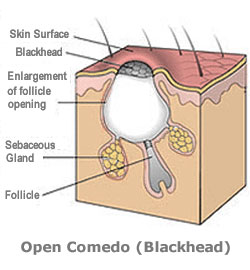 How To Manually Extract Blackheads And Clogged Pores From